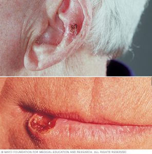 squamous cell carcinomas on ears and lips