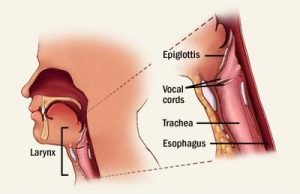throat cancer symptoms